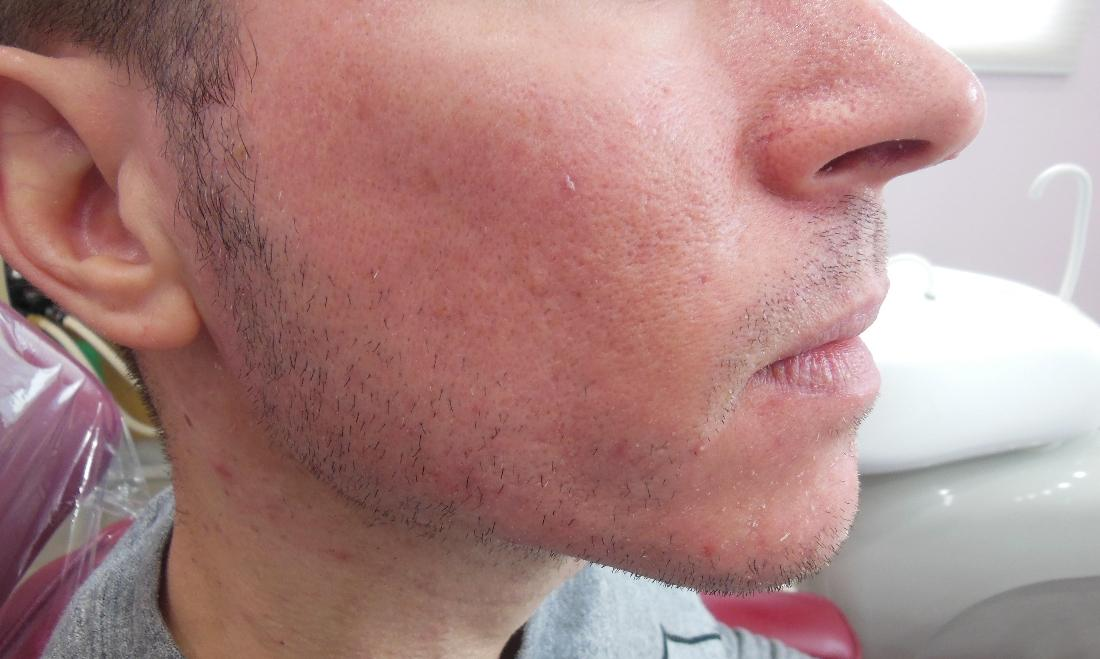 Steven S Turner D D S P C S Before And After Photographs Acne Scars Right Side Pdo Smooth Threads
