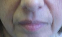 Nasolabial-Folds-Before-and-After-Fillers-Before-Image